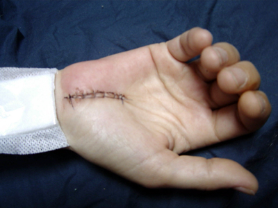 Of a woman s palm with stitches in a surgical wound her hand